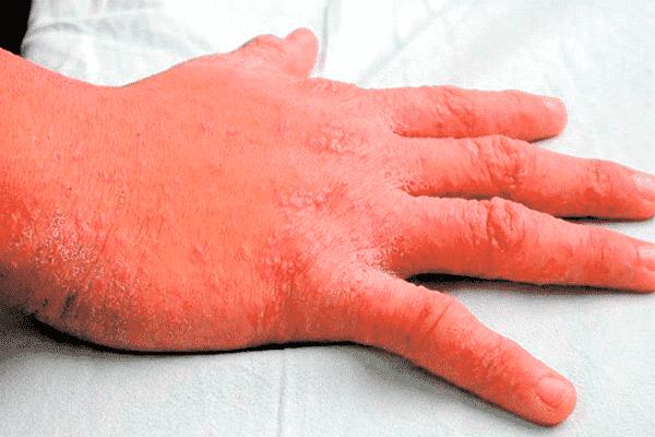 Infecciones de transmisión sexual síntomas