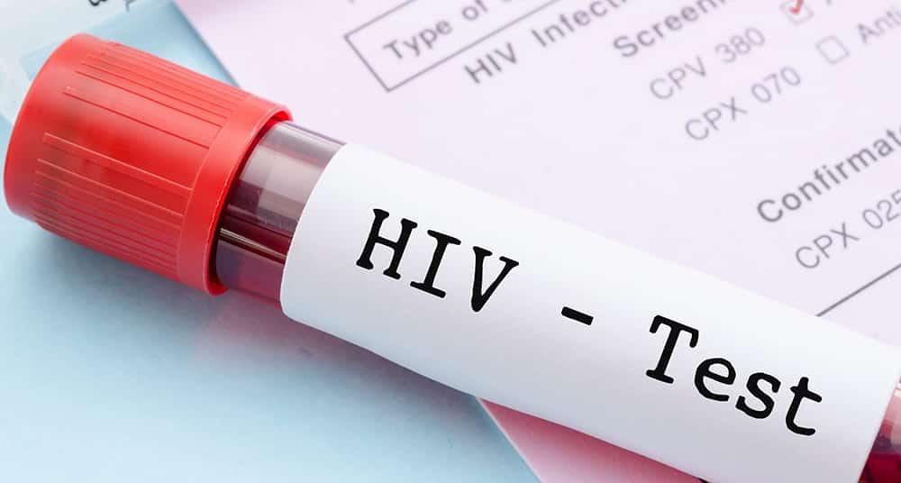 debes saber sobre VIH 1