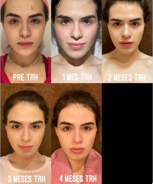 Elvira tratamiento hormonal