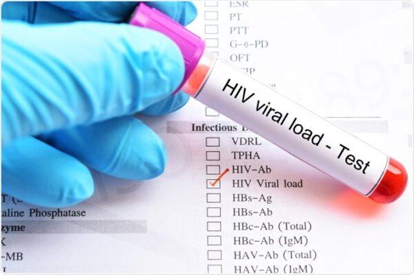 La COVID-19 causó que se postergaran las pruebas de carga viral y la atención para pacientes con VIH