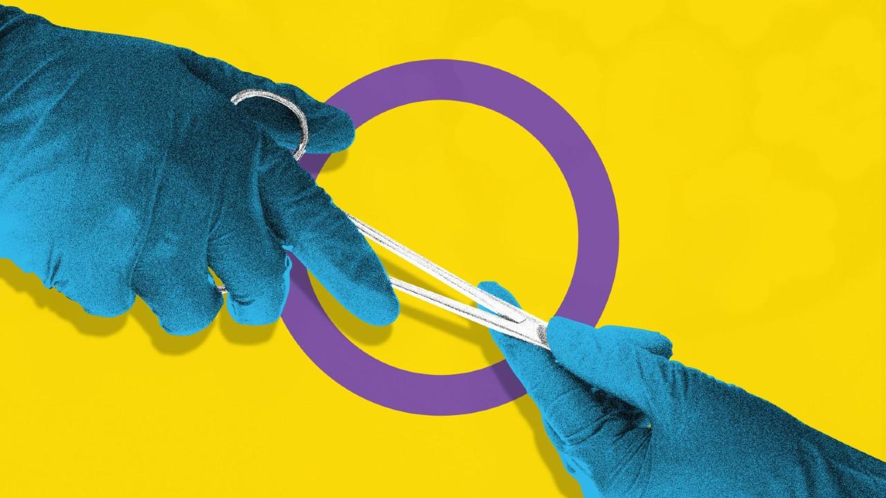 La mutilación infantil en personas intersex es una realidad