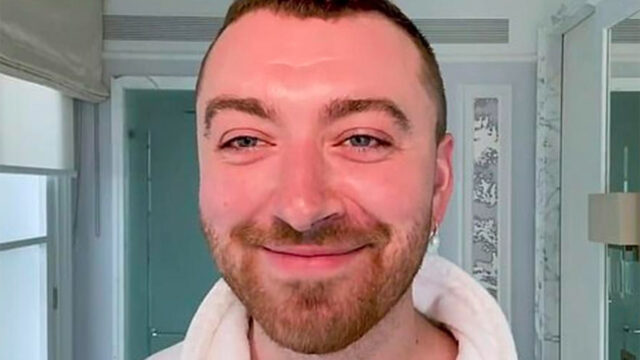 Sam smith binario cantante trasplante cabello