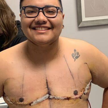 cirugías comunidad trans