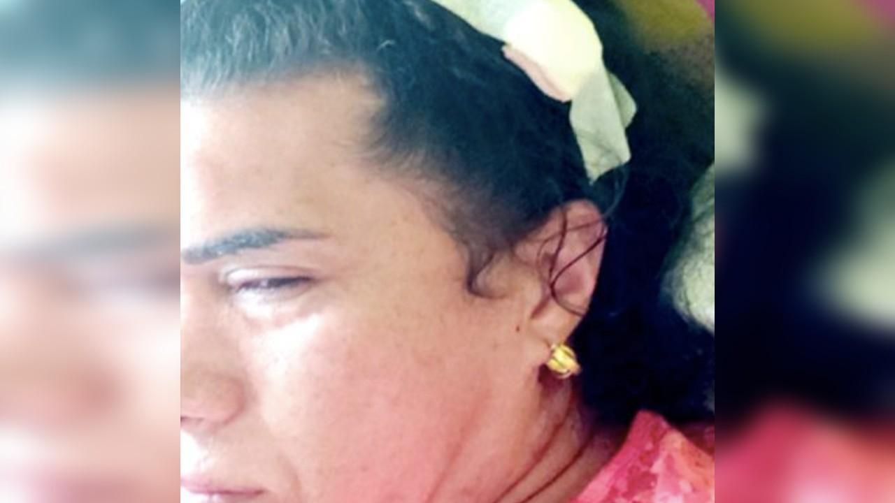 mujer trans ataque transfobia golpiza hermano chile