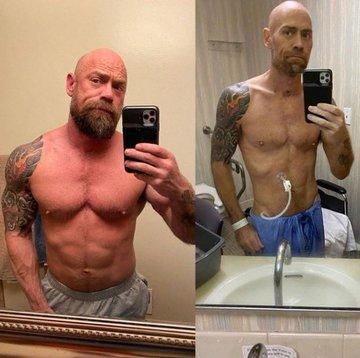 Mike Schultz enfermero covid enfermedad peso
