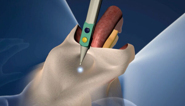 vaginoplastia cirugía