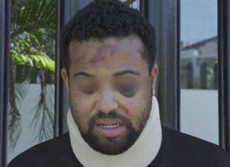 Michael turista estadounidense denuncia agresión en Puerto Vallarta
