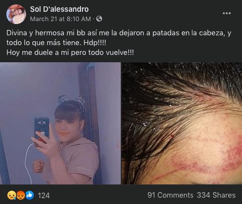 Sol D'alessandro azul adolescente trans Argentina