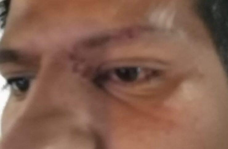 Pareja gay sufre agresión en Metro de CDMX