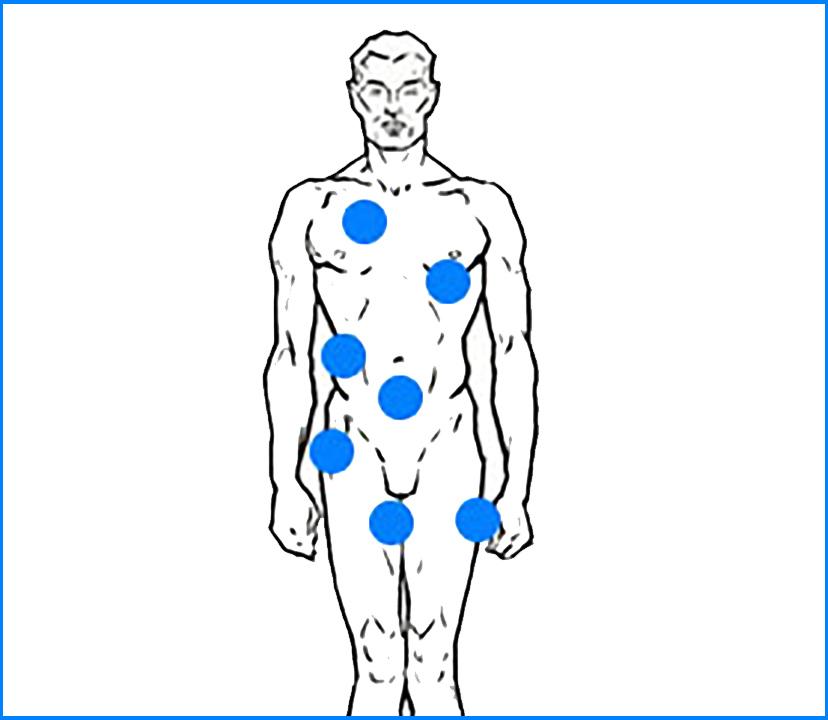 Cirugías masculinización de torso