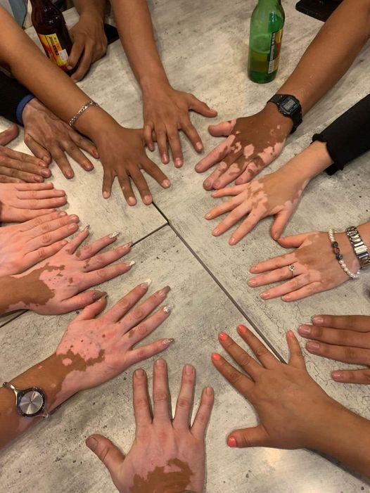 vitiligo México