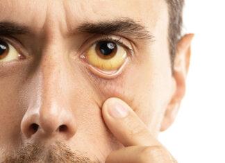 síntomas hepatitis A