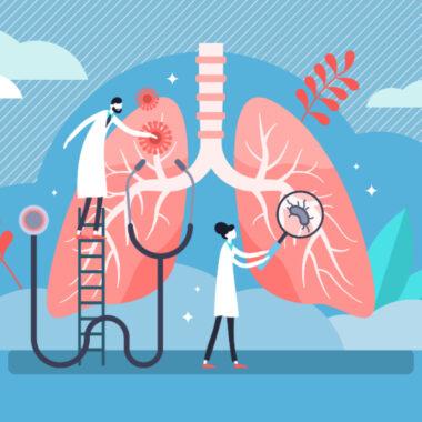 tuberculosis pulmonar vih